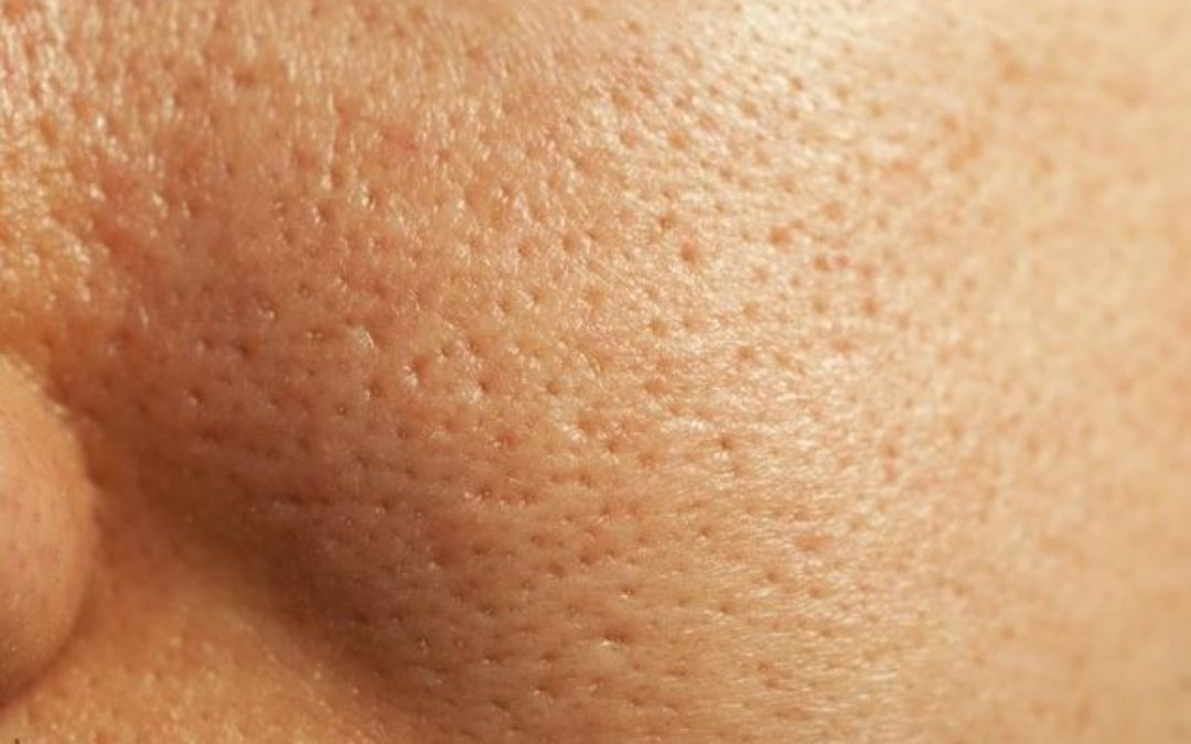 What Causes Large Pores and How to Minimize Them