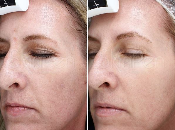 SkinPen Precision Microneedling: What You Need to Know