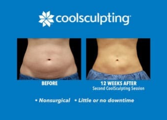 CoolSculpting Aftercare