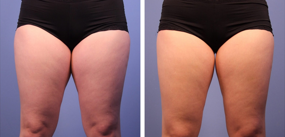 CoolSculpting for Inner Thighs