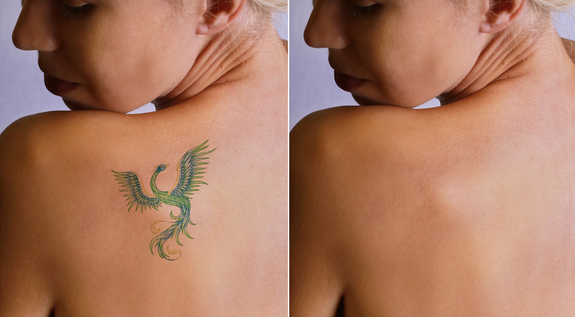 Your Top Questions About Laser Tattoo Removal